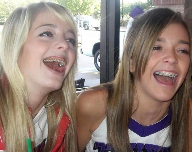 Young woman Twin Cheerleaders Braces..